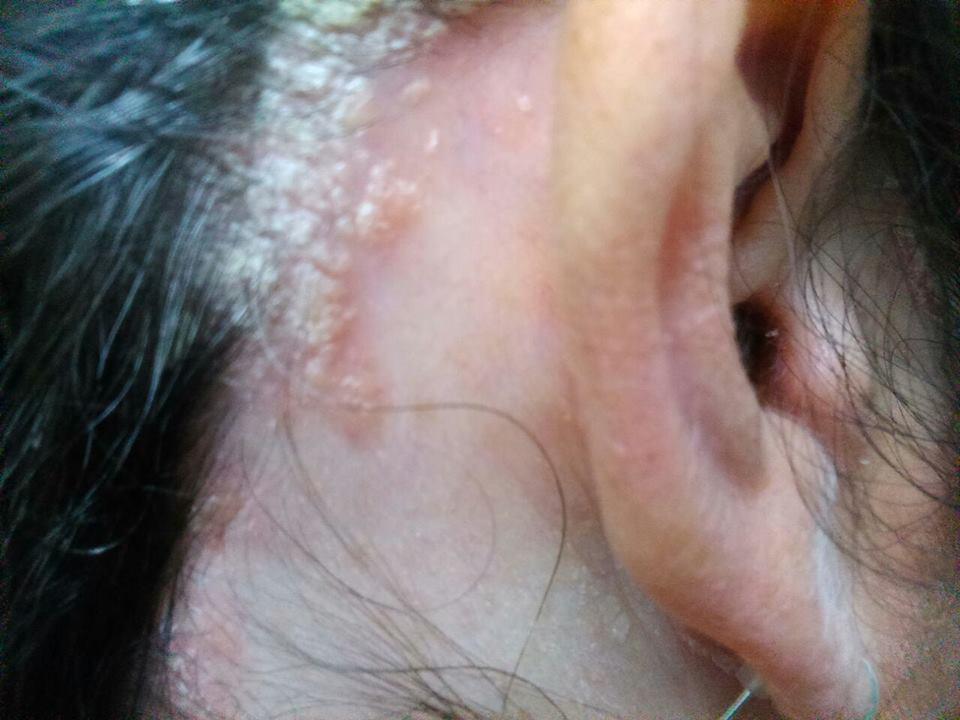 La psoriasis que pastillas